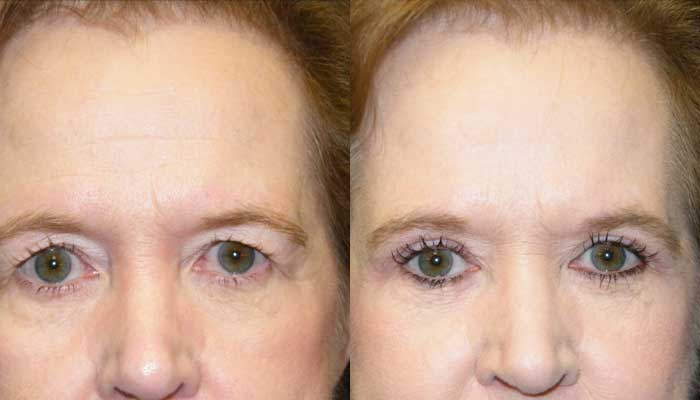 Atlanta Eyelid Surgery Patient 2 Before & After