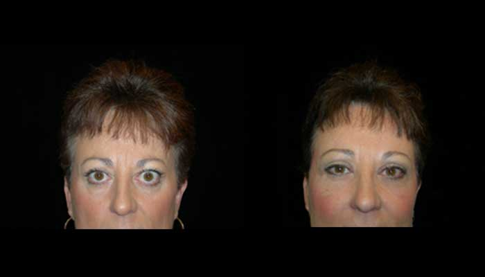 Atlanta Eyelid Surgery Patient Before & After