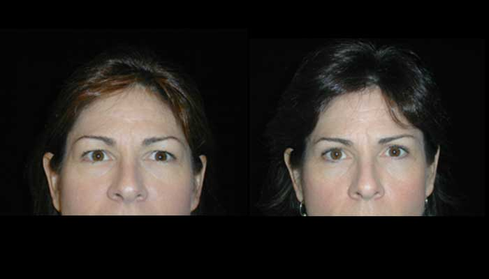 Atlanta Eyelid Surgery Patient 8 Before & After