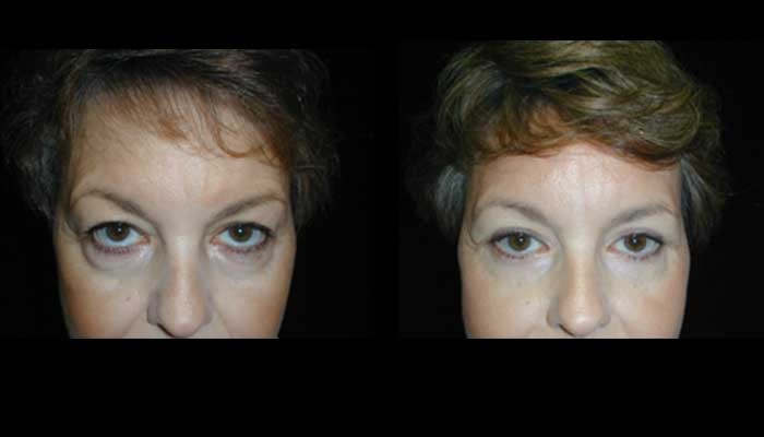 Atlanta Eyelid Surgery Patient 9 Before & After