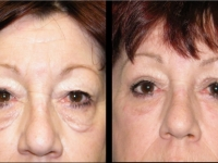 Atlanta Eyelid Surgery Patient 20 Before & After