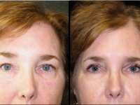 Atlanta Eyelid Surgery Patient 23 Before & After