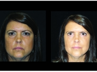 Atlanta Eyelid Surgery Patient 25 Before & After