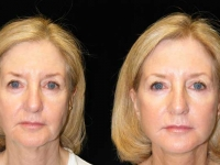 Atlanta Eyelid Surgery Patient 1 Before & After