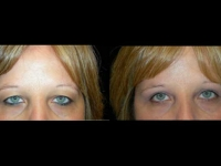 Atlanta Eyelid Surgery Patient 13 Before & After