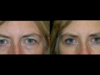 Atlanta Eyelid Surgery Patient 14 Before & After