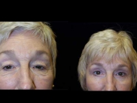 Atlanta Eyelid Surgery Patient 17 Before & After