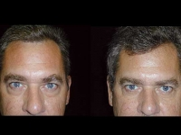 Atlanta Eyelid Surgery Patient 18 Before & After