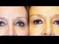 Atlanta Eyelid Surgery Patient 3 Before & After