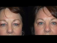 Atlanta Eyelid Surgery Patient 4 Before & After