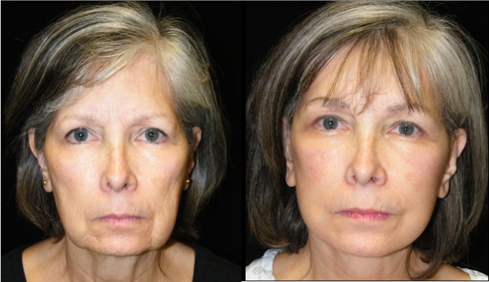 Atlanta Facelift Patient 17 Before & After