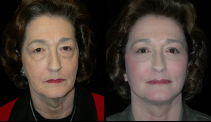 Atlanta Facelift Patient 18 Before & After