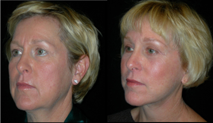 Atlanta Facelift Patient 19 Before & After