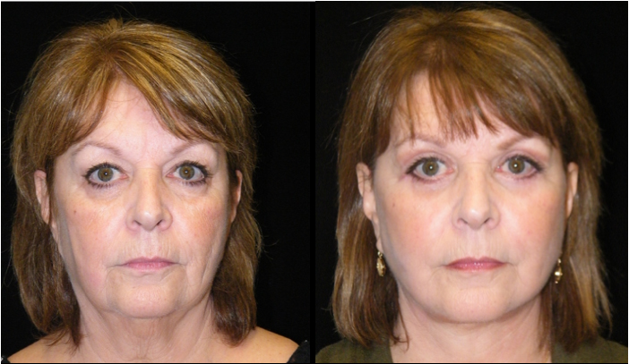 Atlanta Facelift Patient 20 Before & After