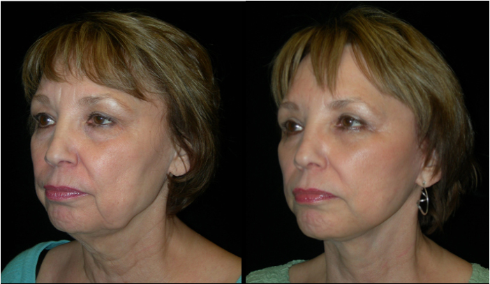 Atlanta Facelift Patient 22 Before & After
