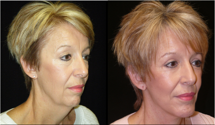 Atlanta Facelift Patient 23 Before & After