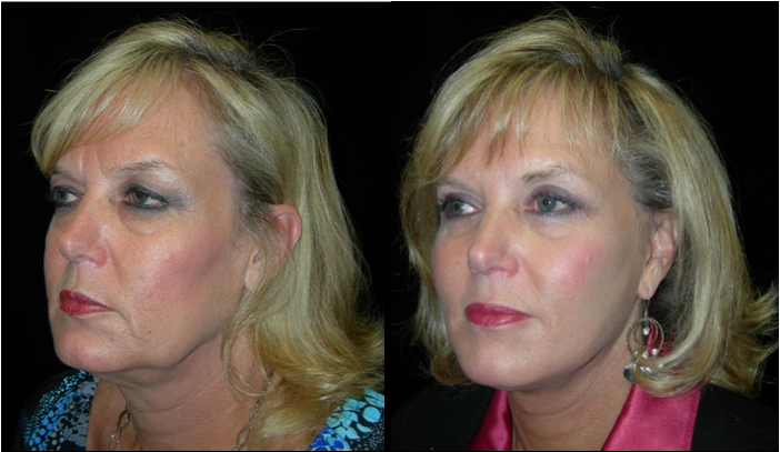 Atlanta Facelift Patient 24 Before & After