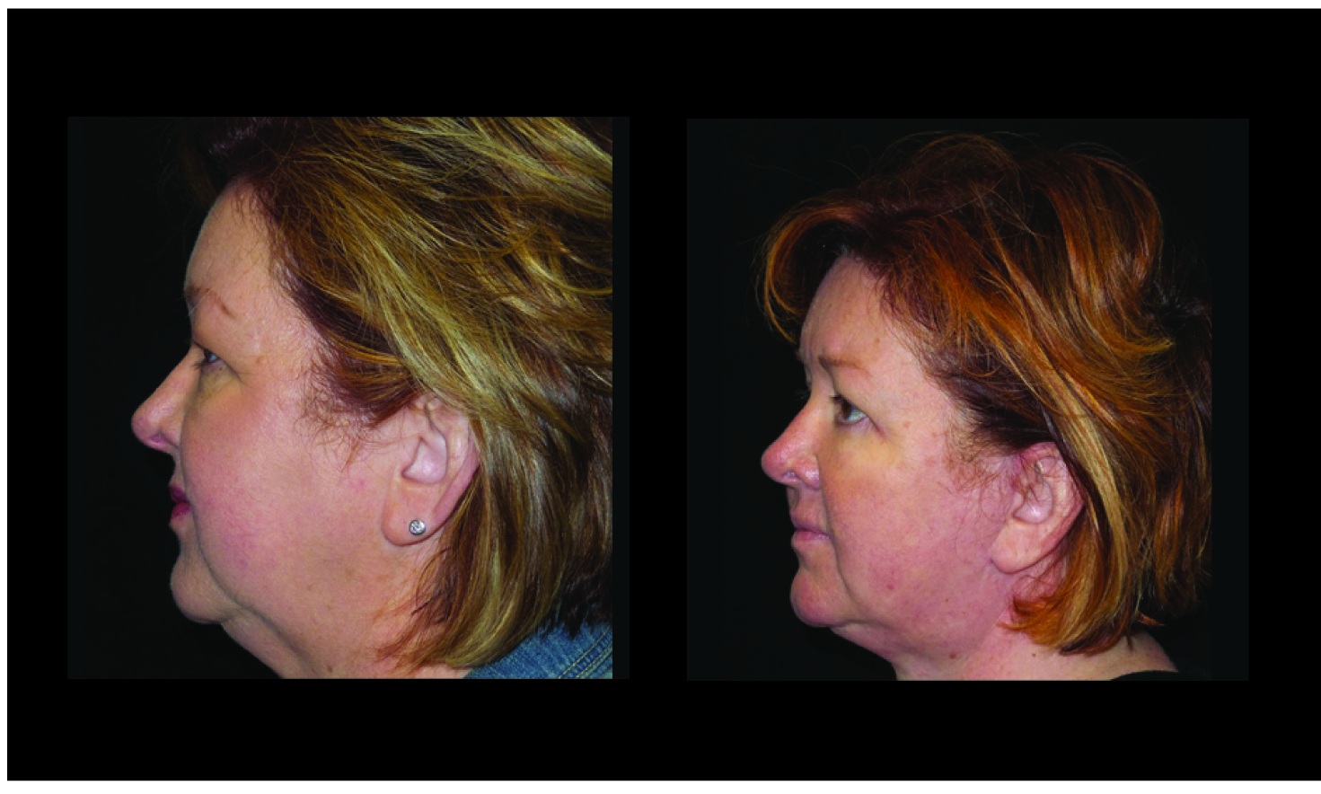 Atlanta Facelift & Eyelid Surgery Patient 50 Before & After
