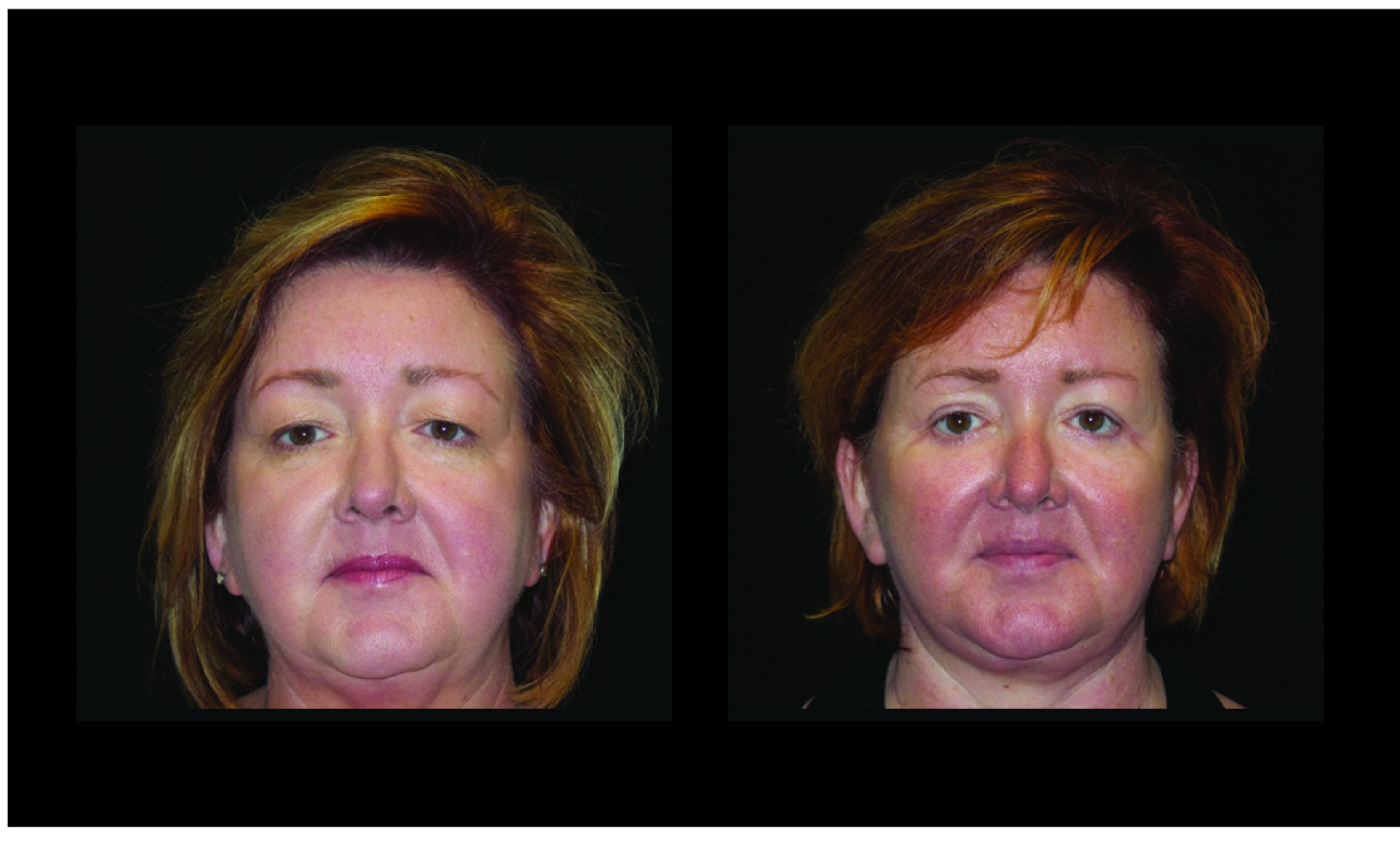 Atlanta Facelift & Eyelid Surgery Patient 49 Before & After