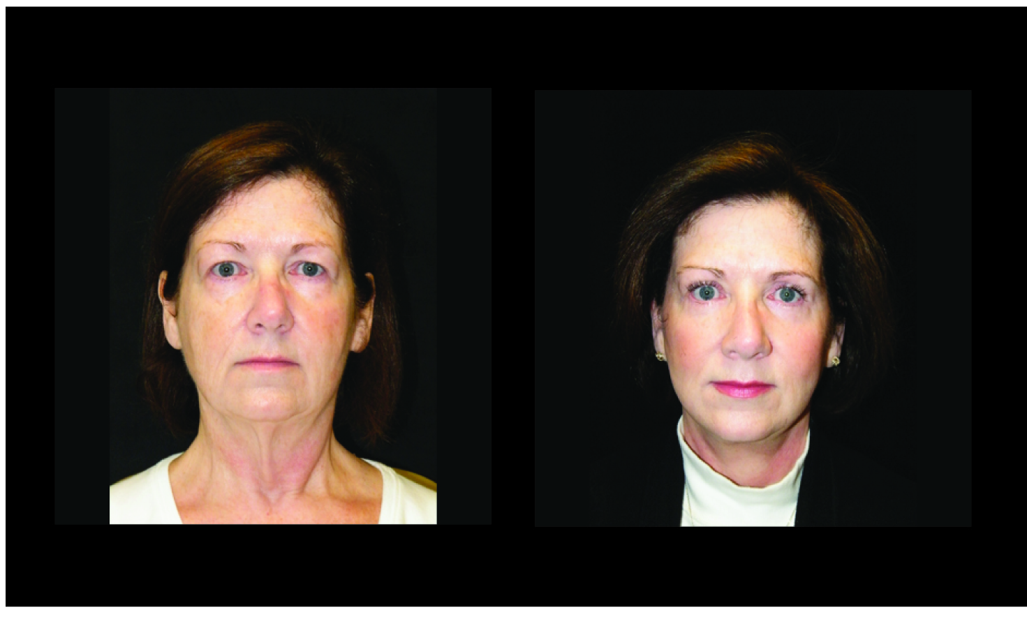 Atlanta Facelift & Eyelid Surgery Patient 47 Before & After