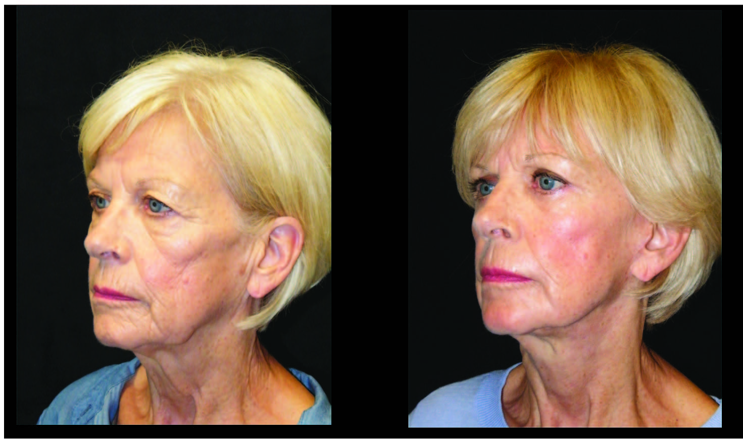 Atlanta Facelift & Eyelid Surgery Patient 1 Before & After