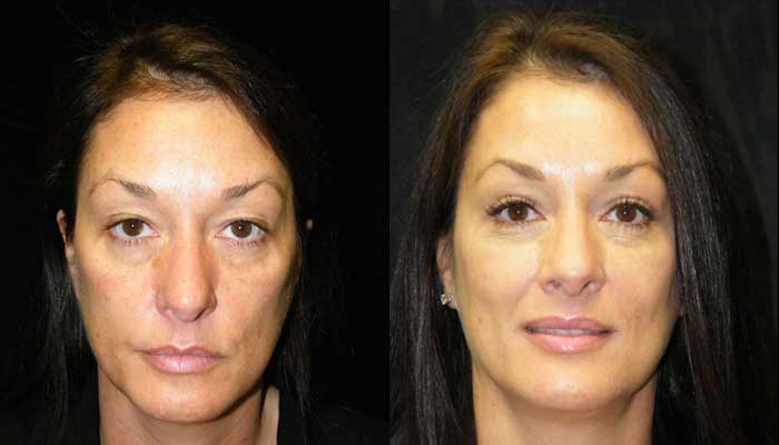 Atlanta Facelift Patient 40 Before & After