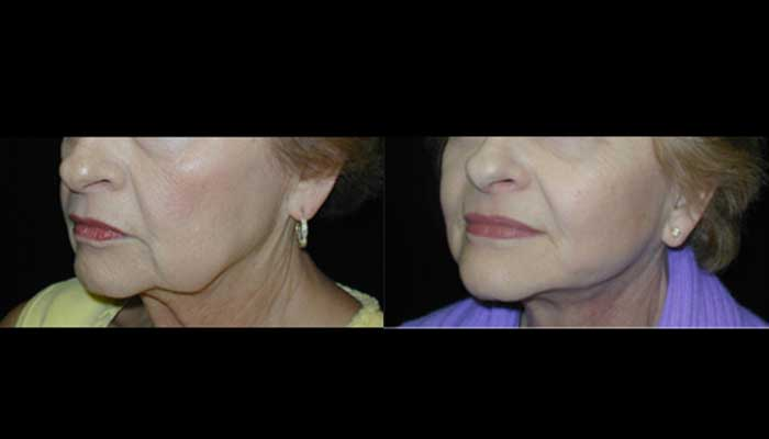 Atlanta Facelift Patient 44 Before & After