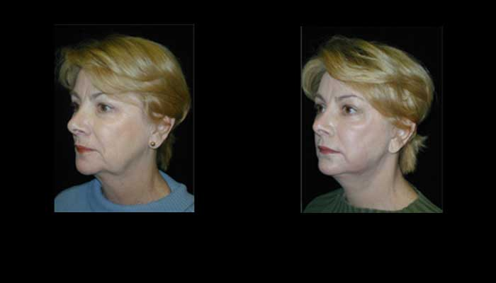 Atlanta Facelift Patient 32 Before & After