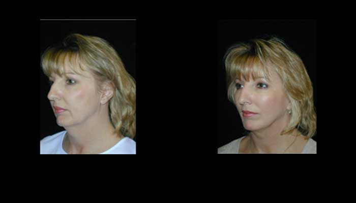 Atlanta Facelift Patient 34 Before & After