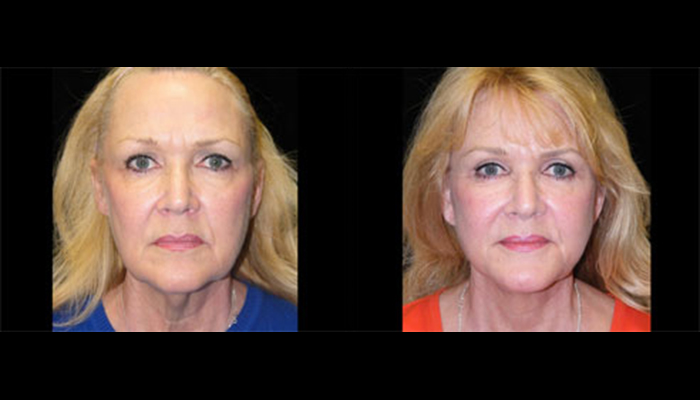 Atlanta Facelift Patient 11 Before & After