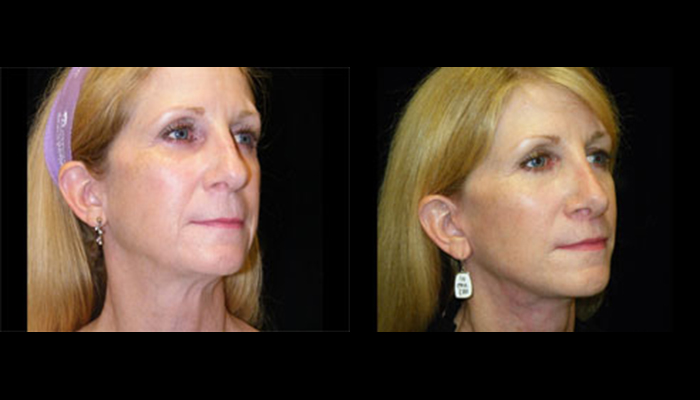 Atlanta Facelift Patient 21 Before & After