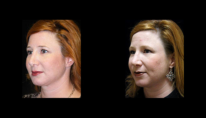 Atlanta Facelift Patient 13 Before & After