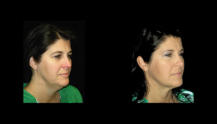 Atlanta Facelift Patient 14 Before & After