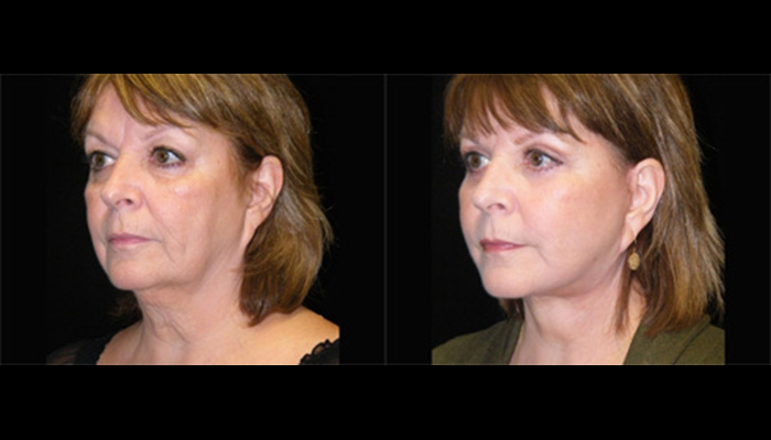 Atlanta Facelift Patient 16 Before & After