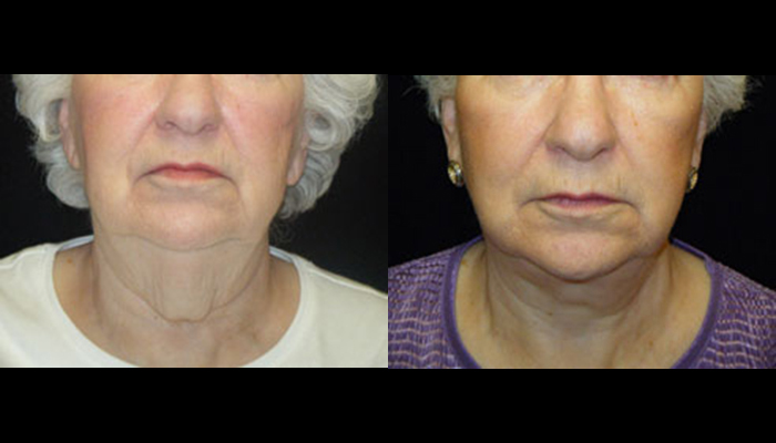 Atlanta Facelift Patient 5 Before & After