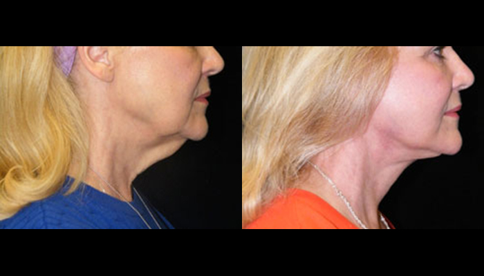 Atlanta Facelift Patient 8 Before & After