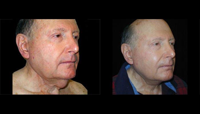 Atlanta Facelift Patient 9 Before & After