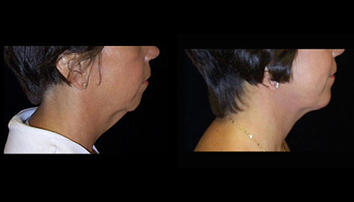 Atlanta Facelift Patient 10 Before & After