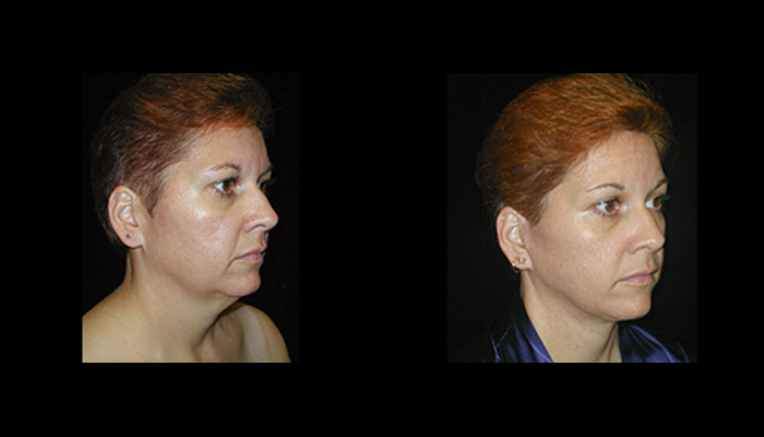 Atlanta Facelift Patient 3 Before & After