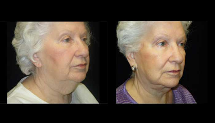 Atlanta Facelift Patient 26 Before & After