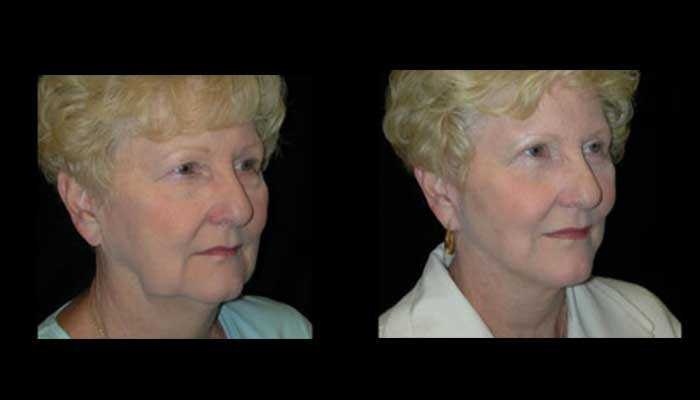 Atlanta Facelift Patient 27 Before & After