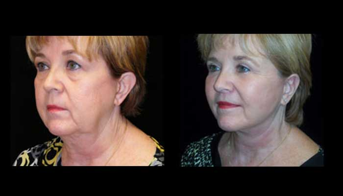 Atlanta Facelift Patient 28 Before & After