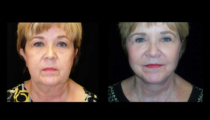 Atlanta Facelift Patient 29 Before & After