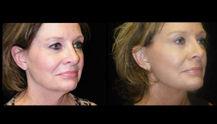 Atlanta Facelift Patient 30 Before & After