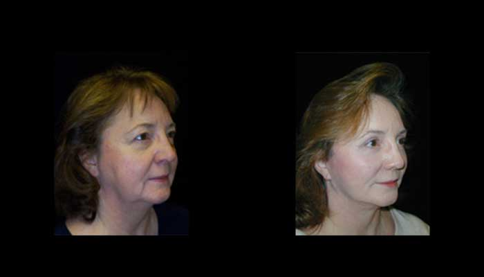 Atlanta Facelift Patient 31 Before & After