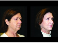 Atlanta Facelift & Eyelid Surgery Patient 48 Before & After