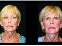 Atlanta Facelift & Eyelid Surgery Patient 2 Before & After