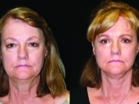 Atlanta Facelift & Eyelid Surgery Patient 45 Before & After