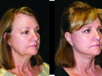 Atlanta Facelift & Eyelid Surgery Patient 46 Before & After