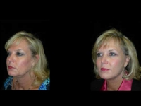 Atlanta Facelift Patient 41 Before & After